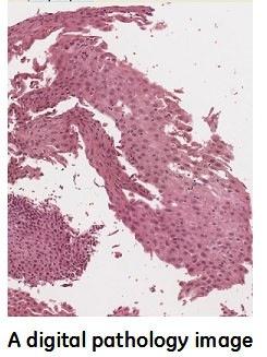 digital-pathology-image.jpg