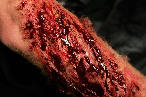 flashback_wounds_opener.jpg