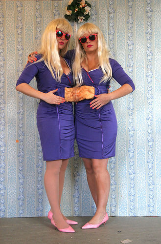magne conjoined twins